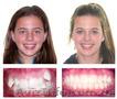 Стоматолог - ортодонт. Постановка брекетов. - Изображение #2, Объявление #1253356
