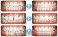 Стоматолог - ортодонт. Постановка брекетов. - Изображение #3, Объявление #1253356